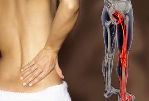 Lower Back Pain nerve